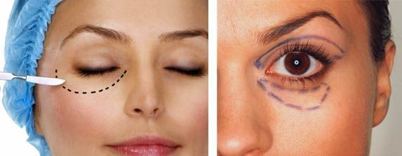Блефаропластика - косметична процедура на століттях