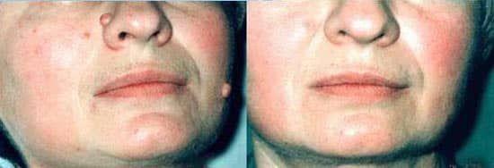 Особа до і після бородавок