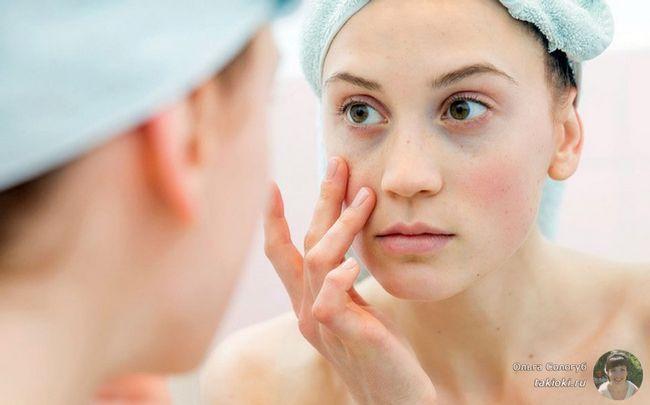 Як прибрати темні кола під очима: косметологія з фото до і після