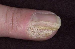 нарости під нігтями на руках